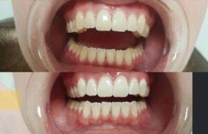 Instyle Vaassen tanden bleken 1