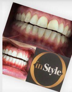 Instyle Vaassen tanden bleken 2