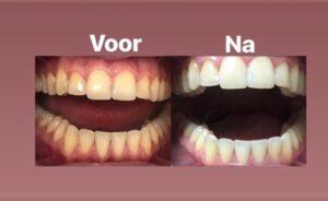 Instyle Vaassen tanden bleken 3